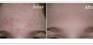 acne-bumps-on-forehead